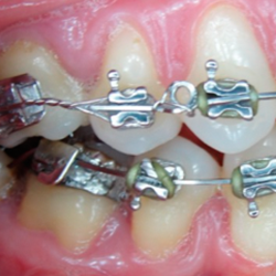 Compromiso gingival