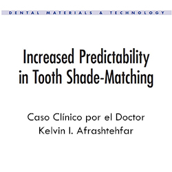 Increased Predictability in Tooth Shade-Matching