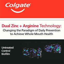 Dual Zinc + Arginine Technology: Changing the Paradigm of Daily Prevention to Achieve Whole Mouth Health