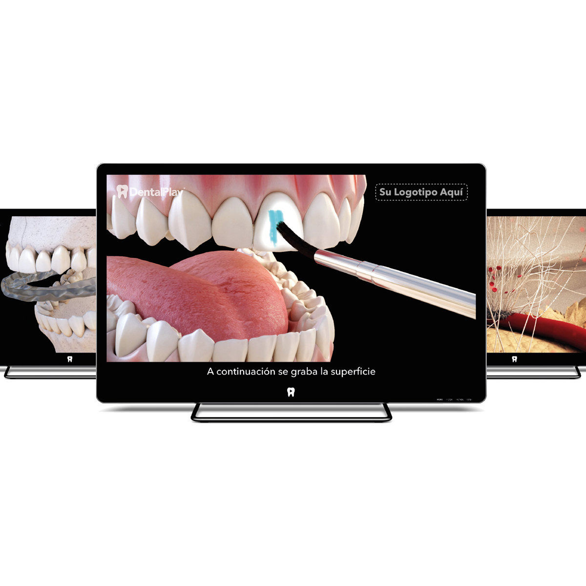 Videos dentales 3D para su consultorio - Pack TOTAL