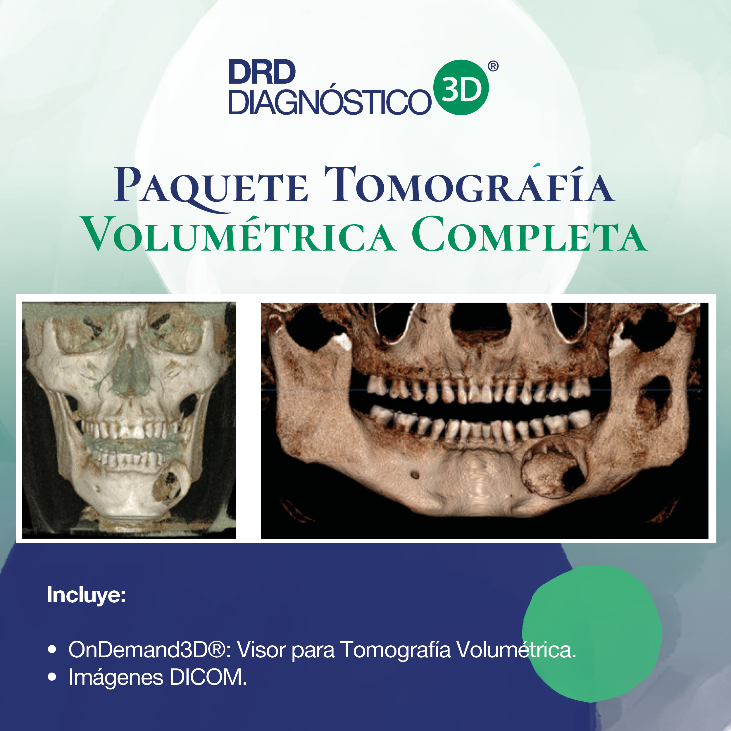 Tomografía Volumétrica completa (incluye visor OnDemand)